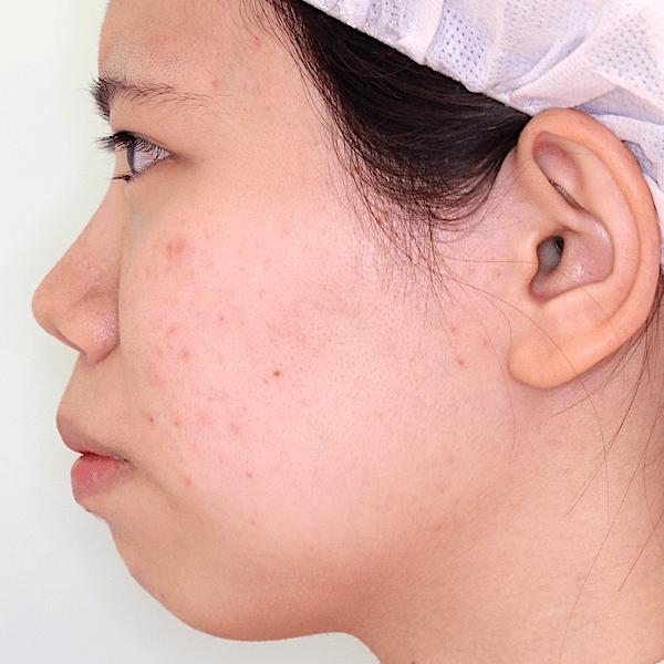 上下顎セットバック|症例写真|術前・側面