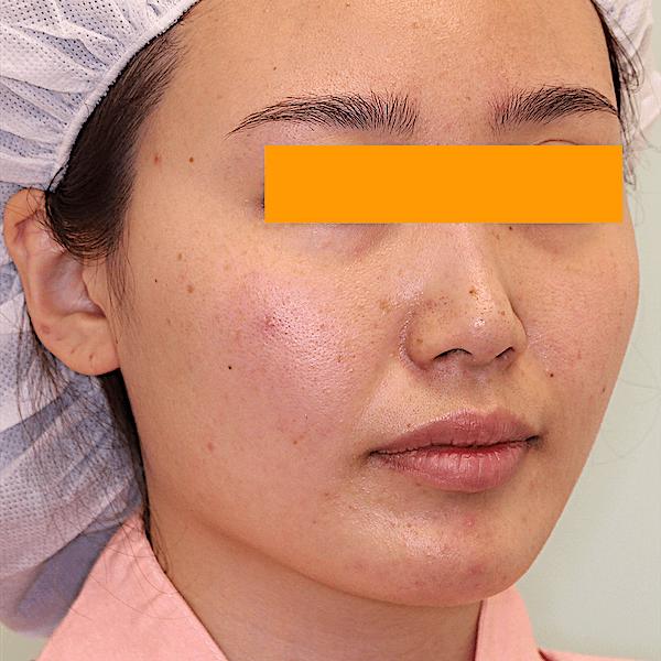 エラ削り手術の症例写真|術前|右斜め