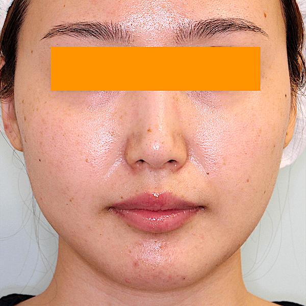 エラ削り手術の症例写真 術後1ヶ月目 正面