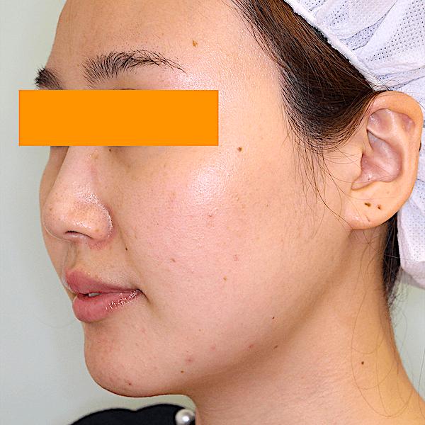 エラ削り手術の症例写真 術後1ヶ月目 左斜め