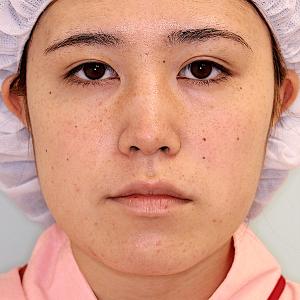 エラ削り手術の症例写真|術前|正面