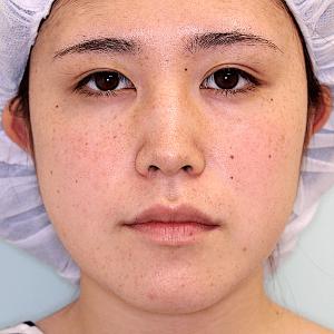 エラ削り手術の症例写真|術後7ヶ月目|正面