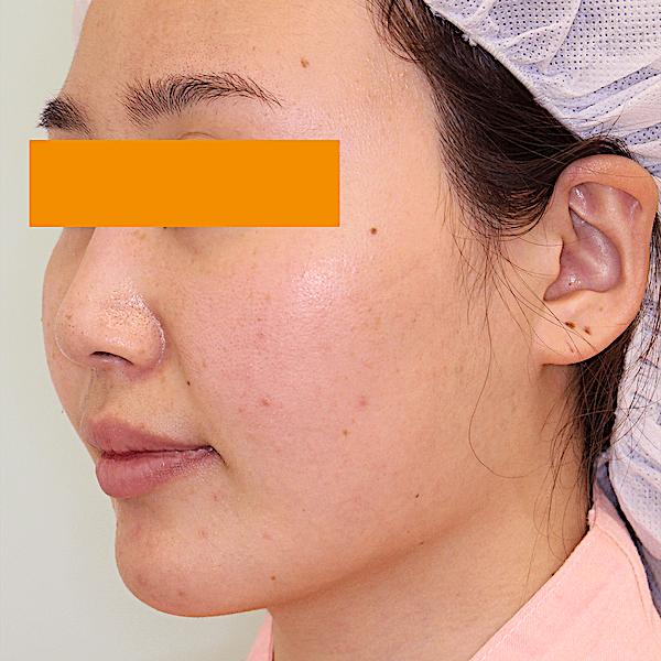 エラ削り手術の症例写真|術前|左斜め