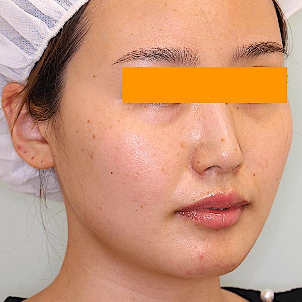 エラ削り手術の症例写真 術後1ヶ月目 右斜め