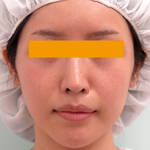 頬骨削り手術の症例写真|3ヶ月後・正面