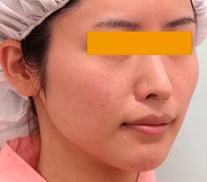 頬骨削り手術の症例写真|術前・左斜め