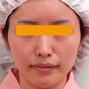 頬骨削り手術の症例写真|術前・正面
