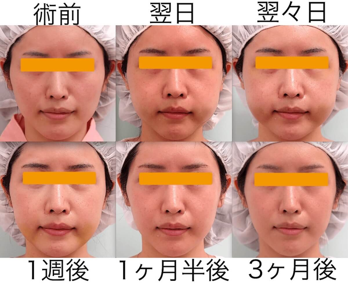 頬骨削り手術|術後の腫れの経過