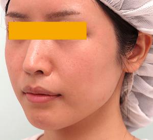 頬骨削り手術の症例写真|3ヶ月後・左斜め