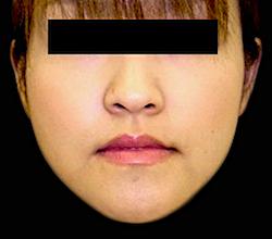 エラボトックス施術後の症例写真