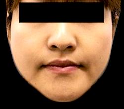 エラボトックス施術前の症例写真