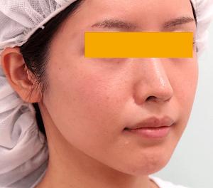頬骨削り手術の症例写真|3ヶ月後・右斜め
