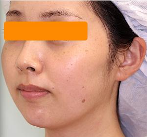 顎下と頬の脂肪吸引|症例写真|3ヶ月後・斜め