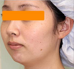 顎下と頬の脂肪吸引|症例写真|術前・斜め
