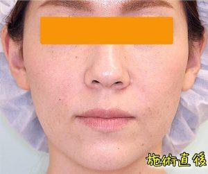ほうれい線ヒアルロン酸の症例写真1|After・正面