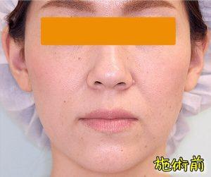 ほうれい線ヒアルロン酸の症例写真|Before・正面