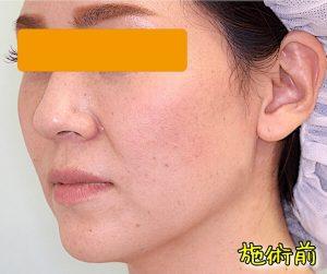 ほうれい線ヒアルロン酸の症例写真|Before・左斜め