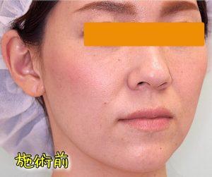 ほうれい線ヒアルロン酸の症例写真|Before・右斜め