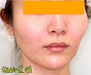 ほうれい線ヒアルロン酸の症例写真(After斜め)