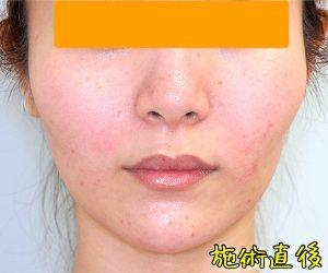 ほうれい線ヒアルロン酸の症例写真(Before直後)