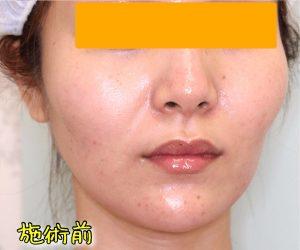 ほうれい線ヒアルロン酸の症例写真(Before斜め)