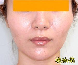 ほうれい線ヒアルロン酸の症例写真(Before正面)