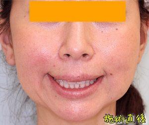 ほうれい線ヒアルロン酸の症例写真|After・口角挙上