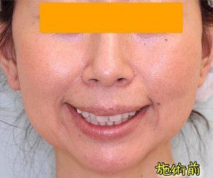ほうれい線ヒアルロン酸の症例写真|Before・口角挙上