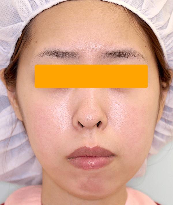 上下顎セットバックの症例写真(術前・正面)
