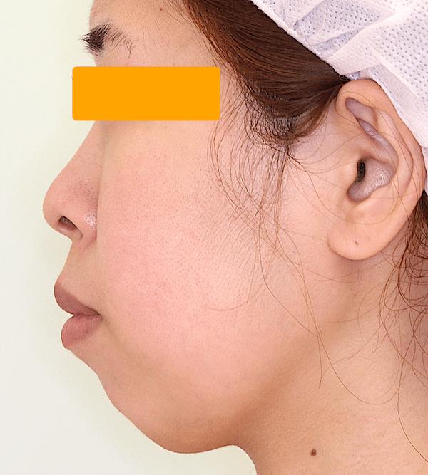 上下顎セットバックの症例写真(術前・側面)