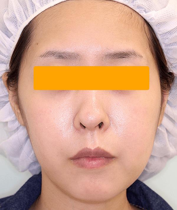上下顎セットバックの症例写真(術後・正面)