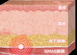 SMAS筋膜を刺激