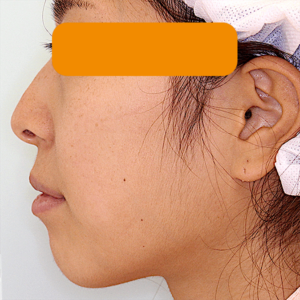 上下顎セットバック の症例写真|術前・側面
