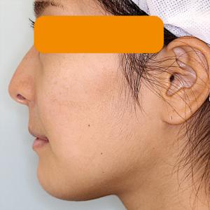 上下顎セットバック の症例写真|2週後・側面