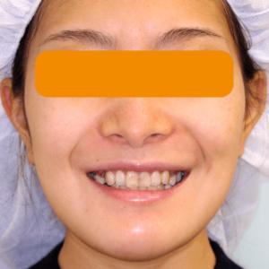 上下顎セットバック の症例写真|ガミースマイル|術後2週目