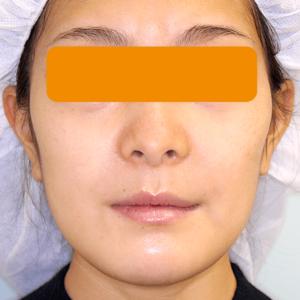 上下顎セットバック の症例写真|2週後・正面