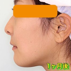上下顎セットバックの症例写真(Before After)|1ヶ月後
