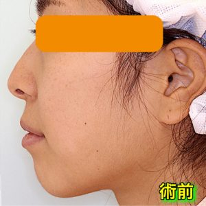 上下顎セットバックの症例写真(Before After)|手術前