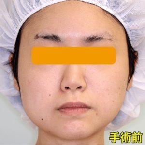 【症例写真】バッカルファット+エラボトックス100単位|手術前