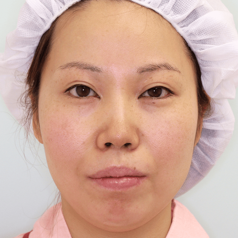上下顎セットバック+バッカルファットの症例写真|正面・手術前