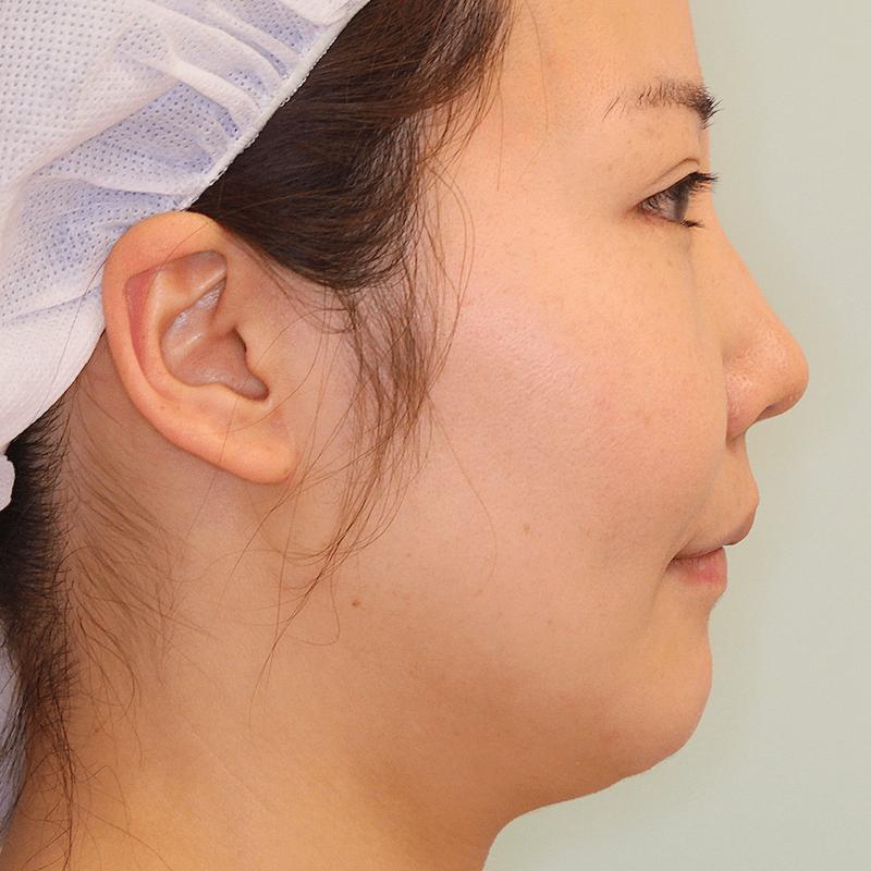 上下顎セットバック+バッカルファットの症例写真|側面・3ヶ月目