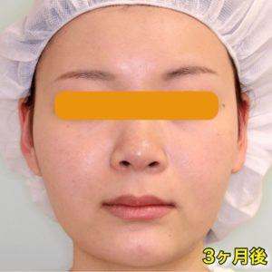 【症例写真】頬骨削り+バッカルファット+エラボトックス|術前・3ヶ月後