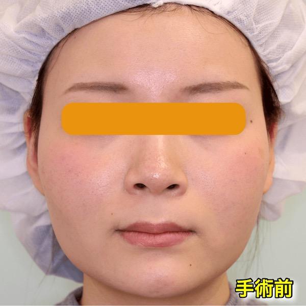 【症例写真】頬骨削り+バッカルファット+エラボトックス|術前・正面