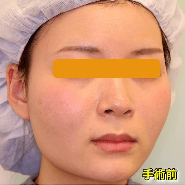 【症例写真】頬骨削り+バッカルファット+エラボトックス|術前・斜め