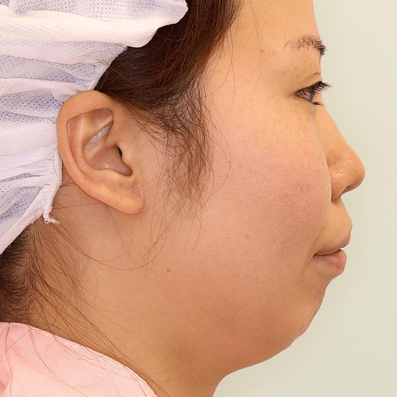 上下顎セットバック+バッカルファットの症例写真|側面・手術前
