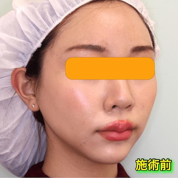 脂肪溶解注射カベリン(Kabelline)の症例写真|Before