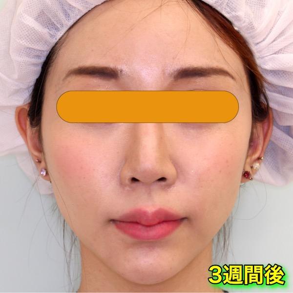 脂肪溶解注射カベリン(Kabelline)の症例写真|After