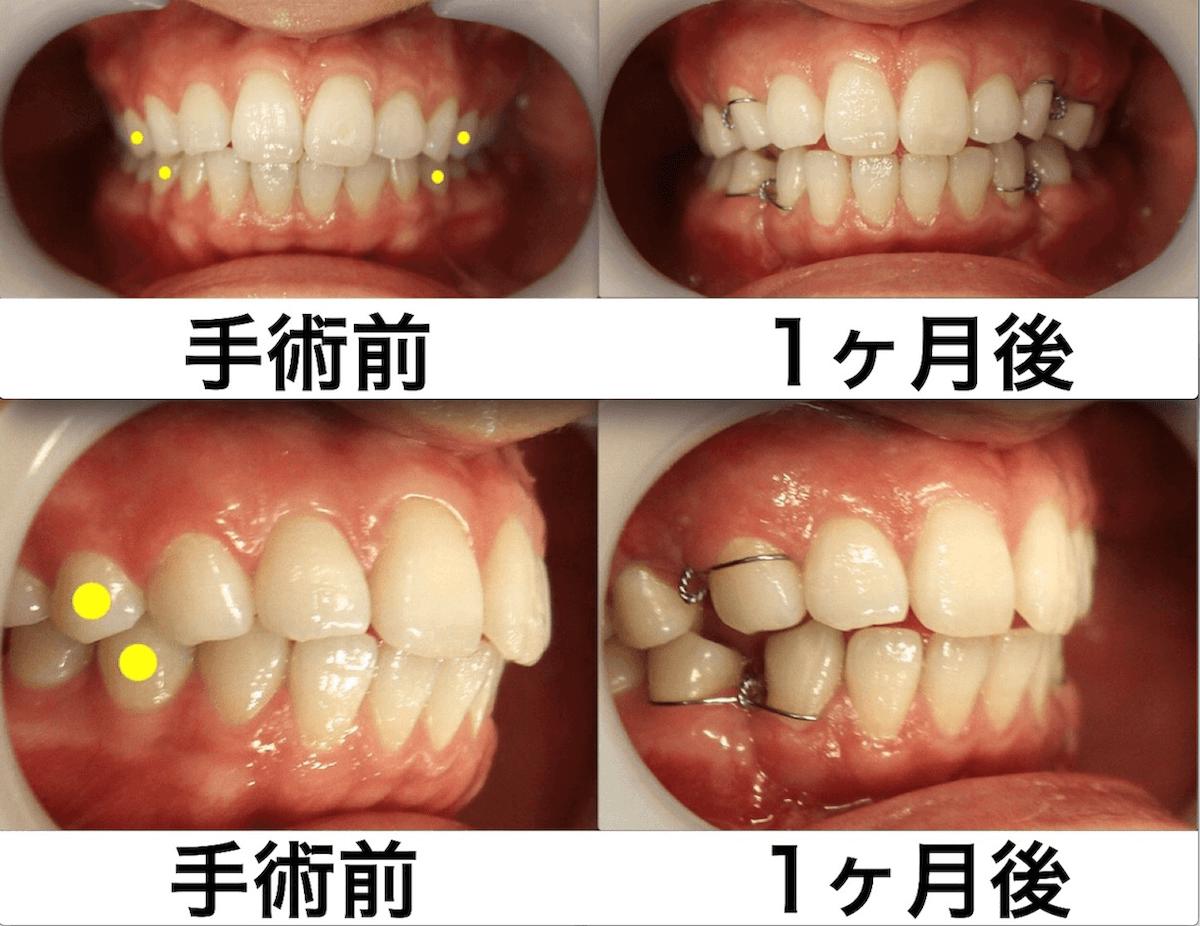 上下顎セットバック+バッカルファットの症例写真|口腔内・1ヶ月後