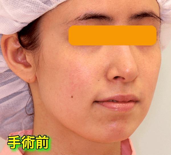 上下顎セットバック+バッカルファットの症例写真|斜め・手術前