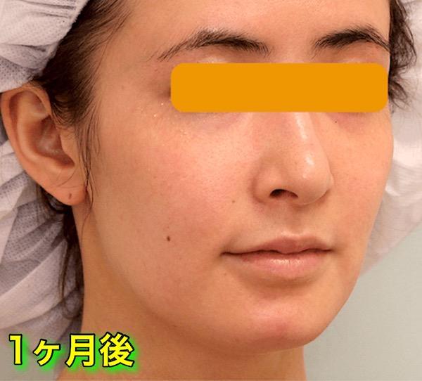上下顎セットバック+バッカルファットの症例写真|斜め・1ヶ月後